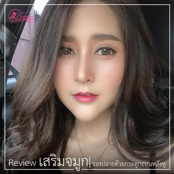 review-กรกฎาคม72